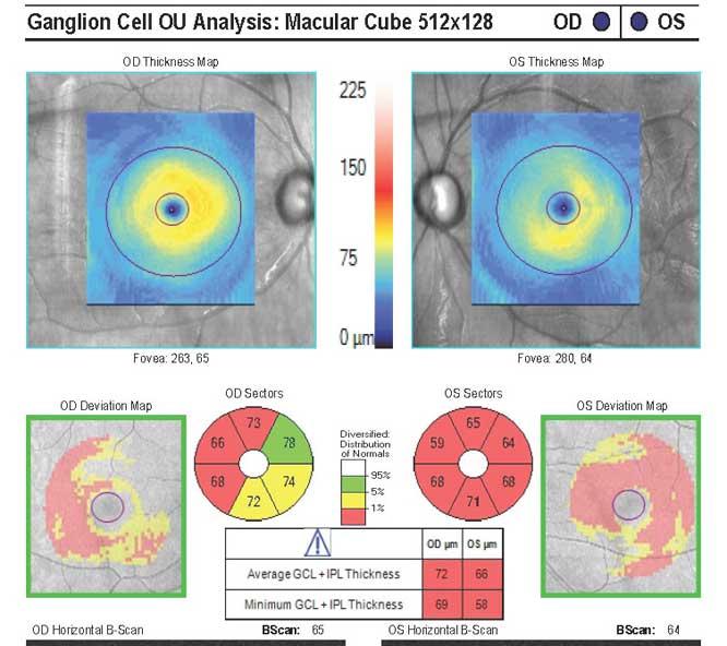 Komórki zwojowe Instytut Oka leczenie jaskry