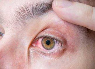 Czerwone oczy okulista warszawa