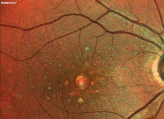 leczenie plamki laser 2RT