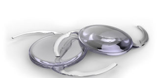 zaćma soczewki wewnątrzgałkowe