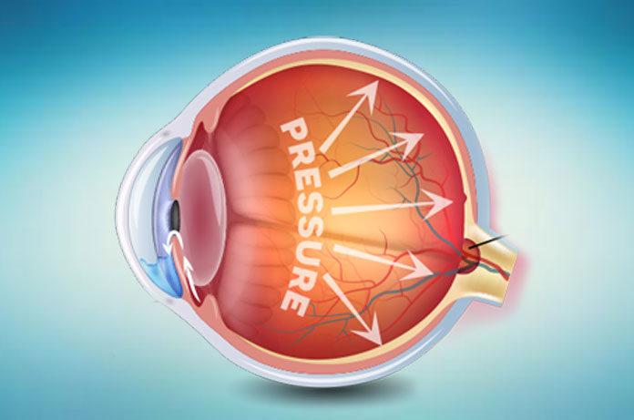 nadciśnienie oczne