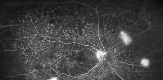 OCT szerokokątne retinopatia cukrzycowa