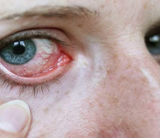 Zespół suchego oka
