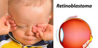 siatkówczak-retinoblastoma